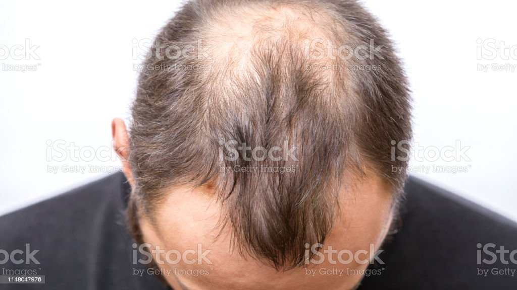 When what young balding do to What Should