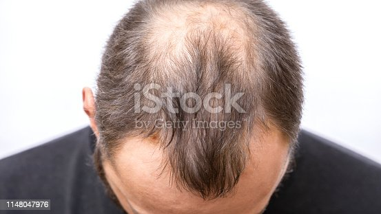 1134770826istockphoto Balding young man, Hair loss problem 1148047976