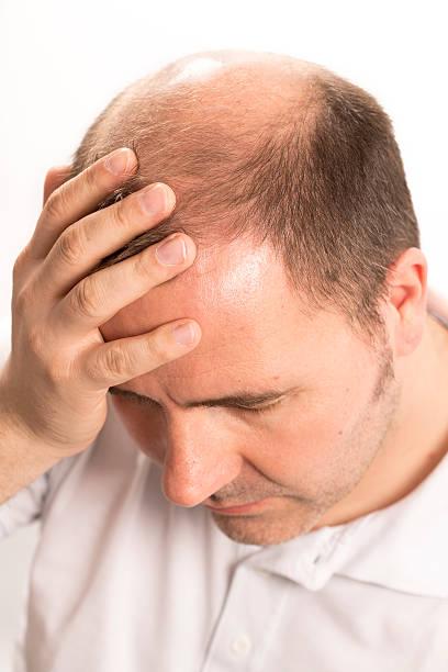 alopezie mann voranschreitende haarausfall haarpflege - glatze schneiden stock-fotos und bilder