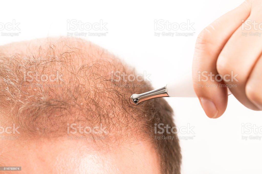 Baldness Alopecia man hair loss stock photo