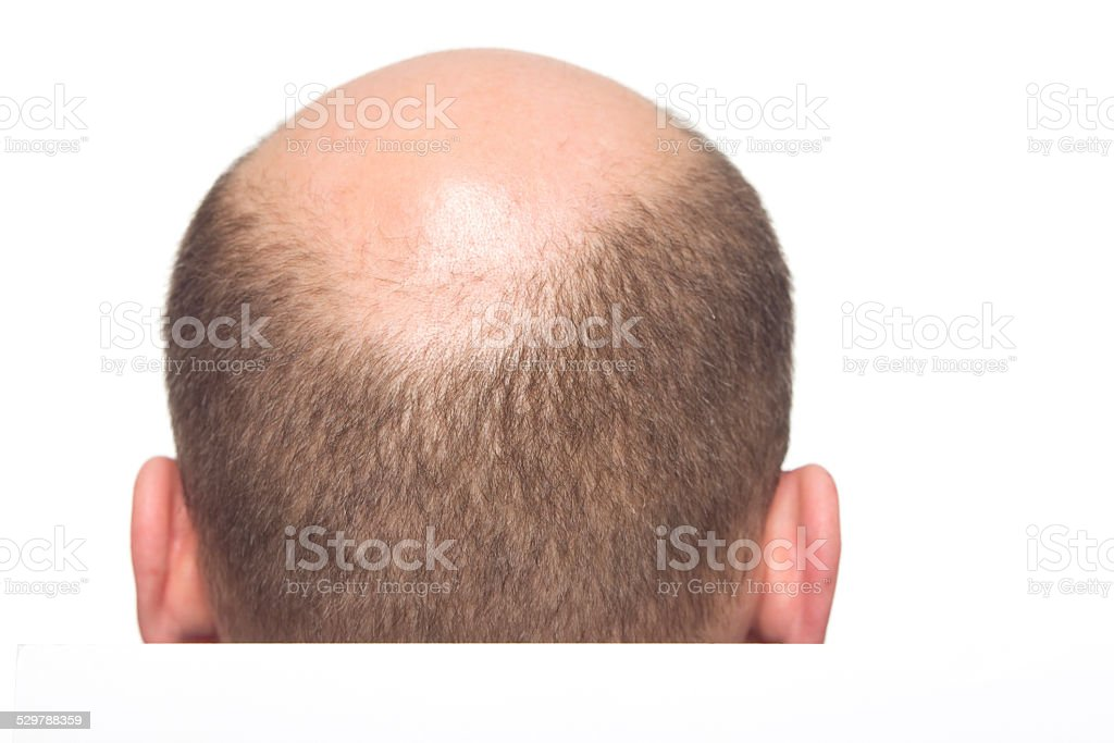 Baldness in men XXXL stock photo