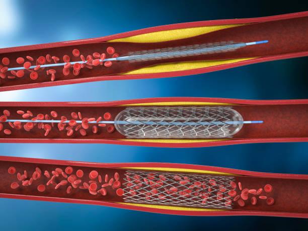 Balloon angioplasty procedure stock photo