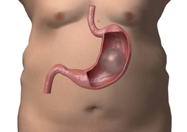 Balloon gastric 3D rendering. inflatable device that is placed in the stomach to reduce weight stock photo