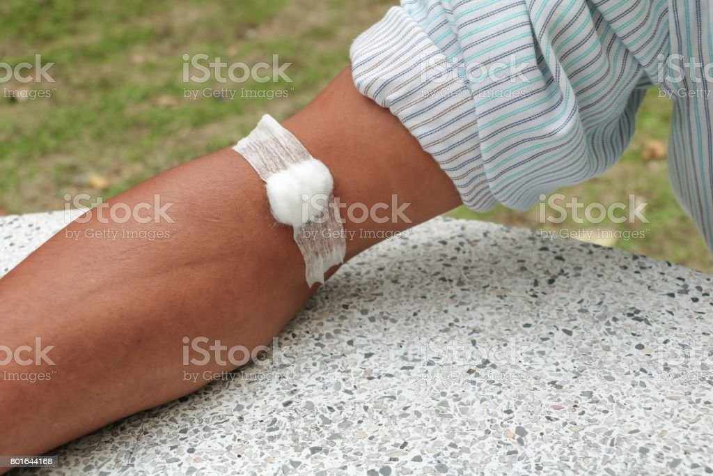 Bandage and gauze on an arm after a blood test :Select focus with shallow depth of field stock photo