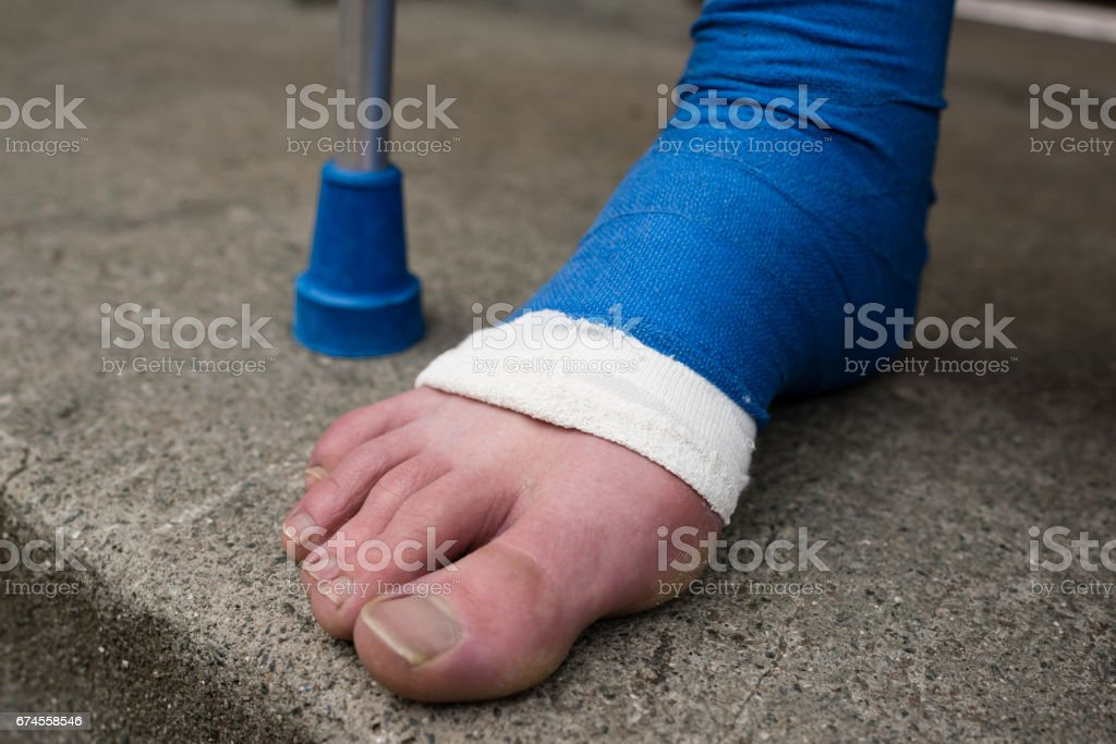 Detail of bandaged foot in plaster at the stone doorstep outside an...