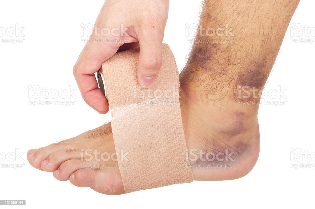 Bandaging a sprained ankle stock photo