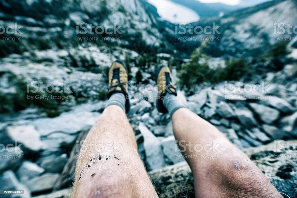 Banged up knees after climbing in Lake Tahoe, Ca stock photo