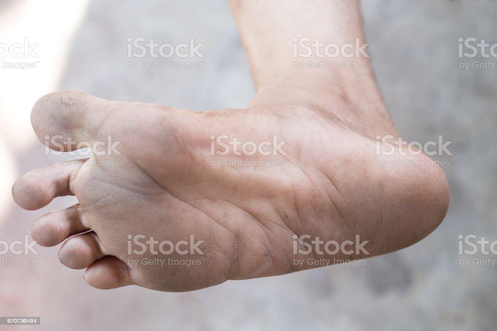 Descalça doença
