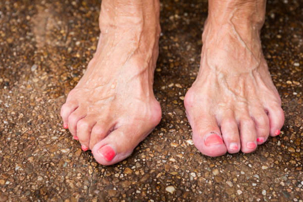 bare feet showing bilateral bunions and hammertoes of a caucasian woman standing on a pavement outdoors on a summer day - disfigure stock pictures, royalty-free photos & images