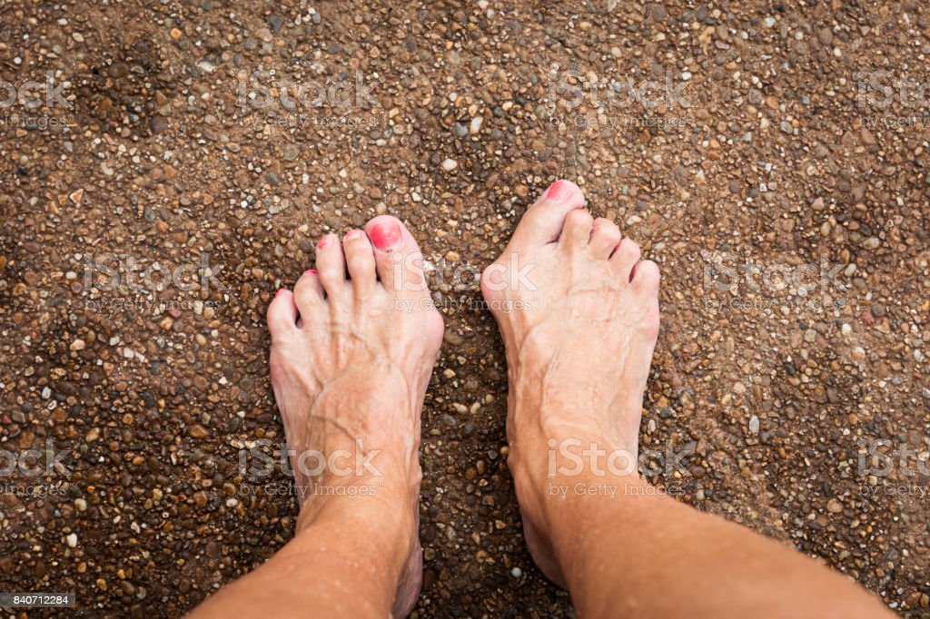 Bare feet showing bilateral bunions and hammertoes of a senior Caucasian woman standing on a pavement outdoors on a summer day stock photo