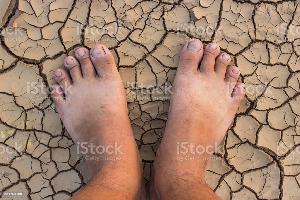 Barefoot standing on dry and cracked ground background and textu stock photo