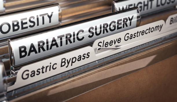 Bariatrische Chirurgie Typen, Magen bypass oder Hülse Gastrektomie. – Foto