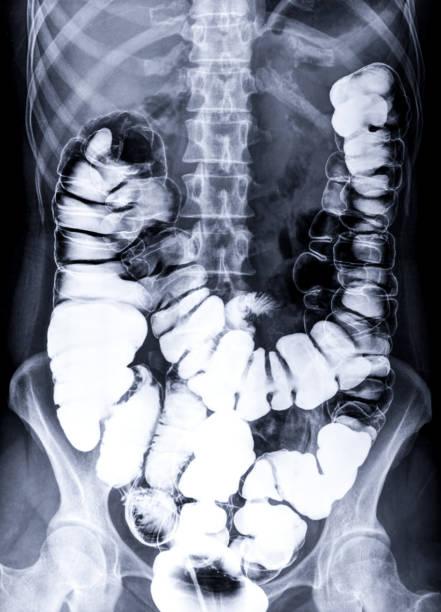 Barium Einlauf oder BE ist Bild des großen Darms nach Injektion von Barium-Kontrast füllung in Den Dickdarm unter fluoroskopischer Kontrolle. – Foto