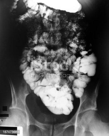 http://www.tbradphoto.com/istock_blog/medical_short.jpg