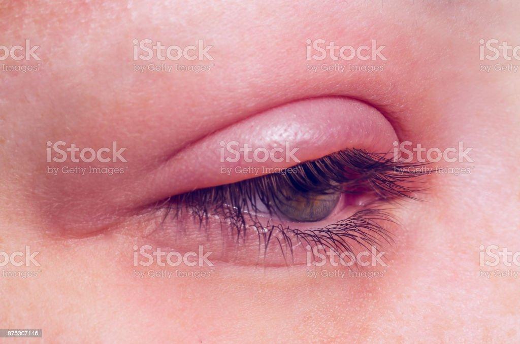 Gerste-Infektion am Auge – Foto