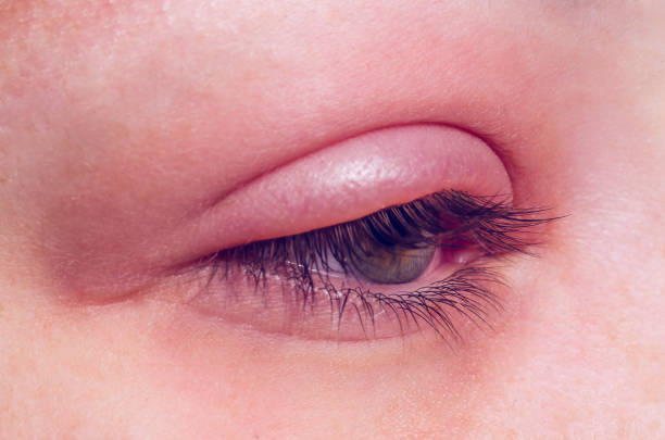 barley infection on the eye - eyelid stock pictures, royalty-free photos & images