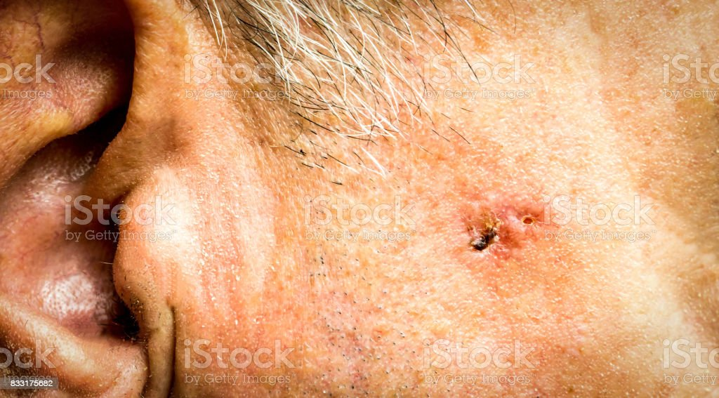 Basal Cell Carcinoma on the face of older man before surgery - closeup stock photo