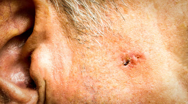 Basal Cell Carcinoma on the face of older man before surgery - closeup Basal Cell Carcinoma on the face of older man before surgery - closeupBasal Cell Carcinoma on the face of older man before surgery - closeup carcinoma stock pictures, royalty-free photos & images
