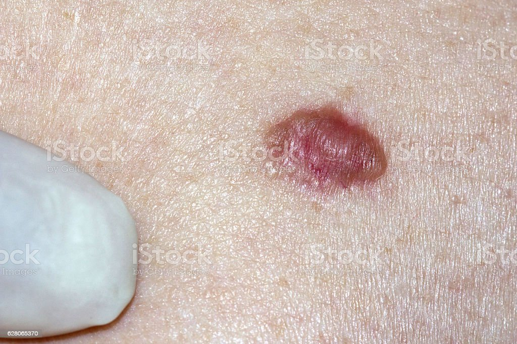 Basal Cell Carcinoma stock photo