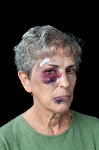 istock Beaten elderly woman 151615792