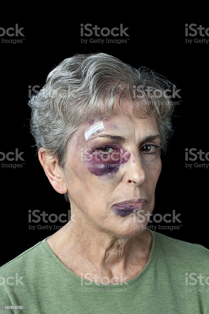 Beaten elderly woman stock photo