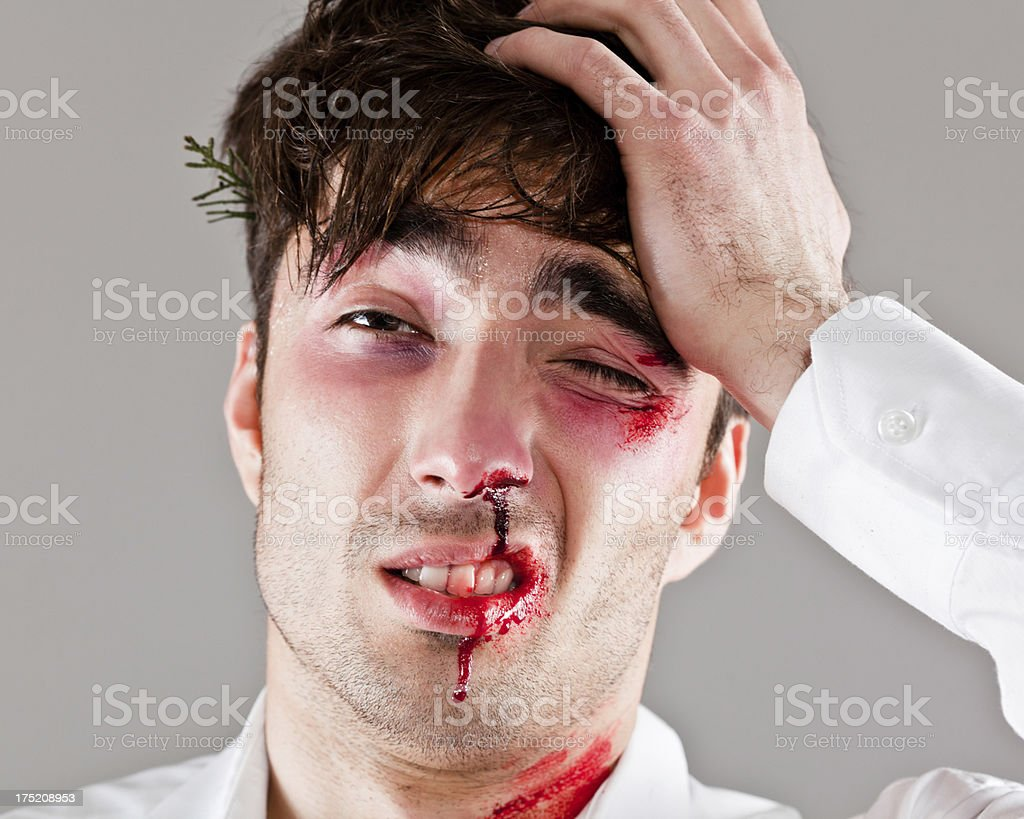 Beaten man stock photo