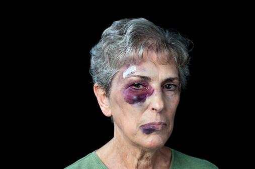 istock Beaten old woman 178375100