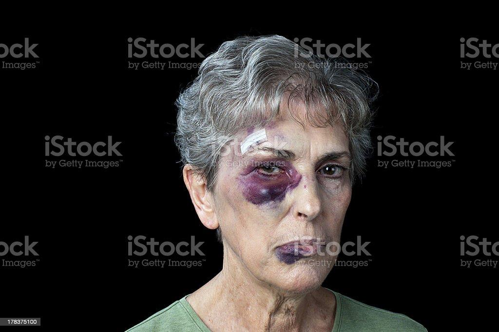 Beaten old woman stock photo