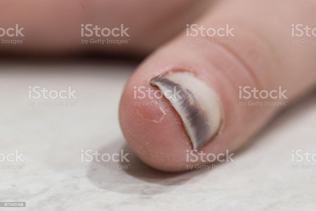 Beaten thumb nail stock photo
