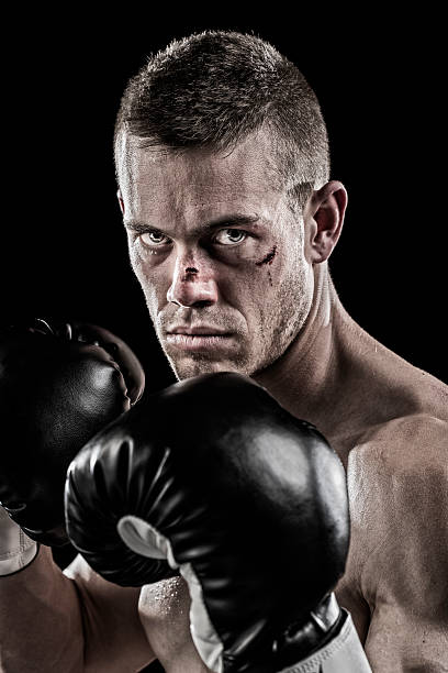 Royalty Free Beaten Up Face Pictures, Images And Stock