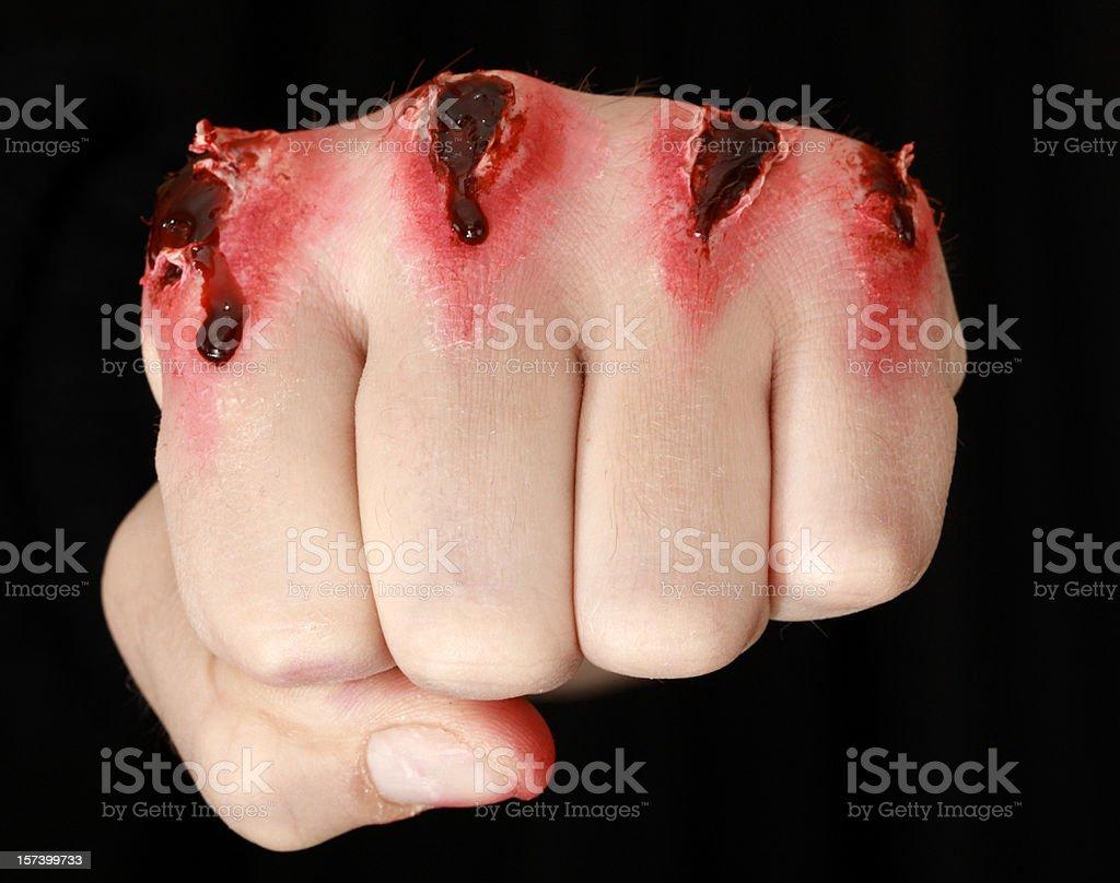 Beaten Up Fist royalty-free stock photo