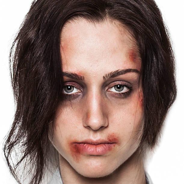 Beaten up girl front stock photo