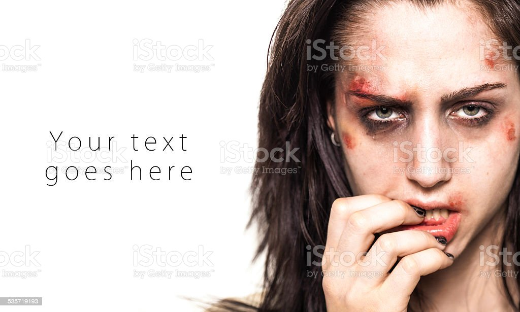 Beaten up girl with deep look card stock photo