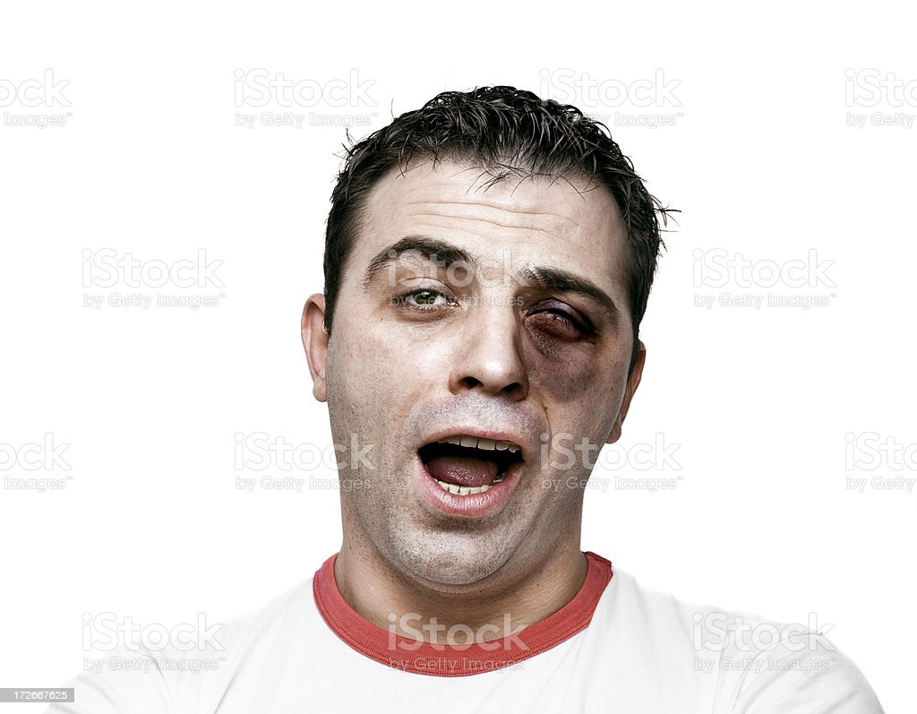 Beaten up stock photo