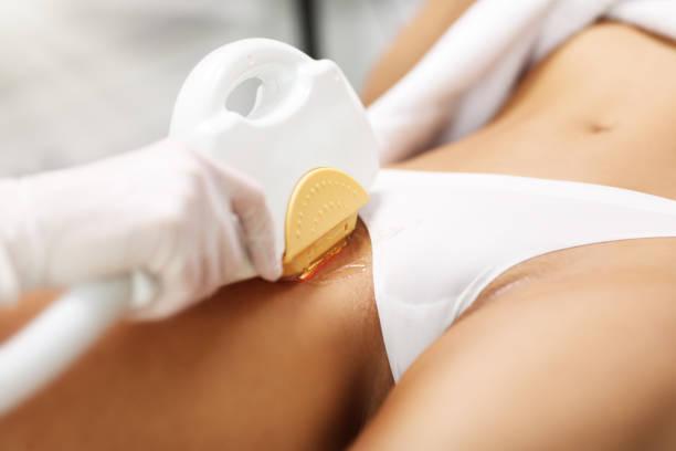 Kosmetikerin gibt Epilationslaser-Behandlung für Frau auf Bikini – Foto