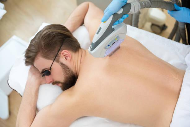 Beautician giving men laser epilation stock photo