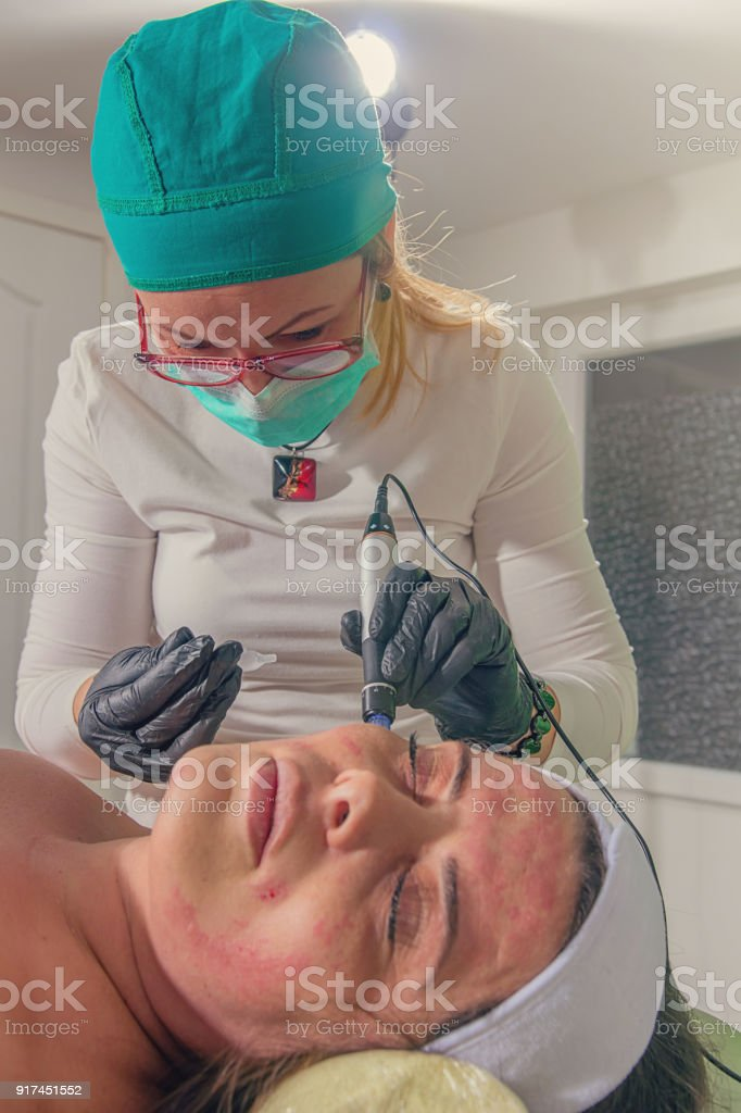 Beautician performs a needle mesotherapy treatment on a woman face. stock photo