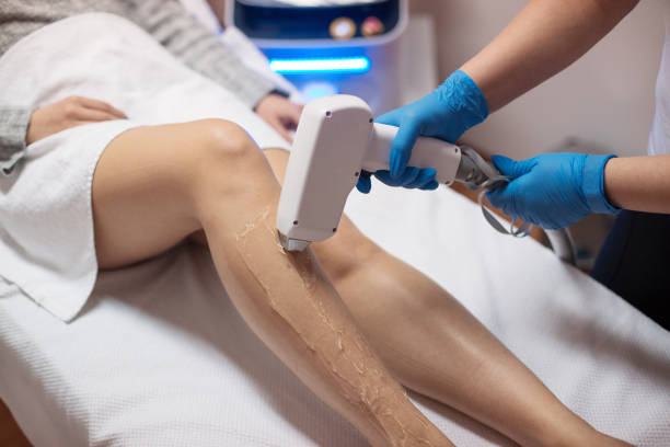 Beautician removing hair with laser epilator Woman removing her hair with laser epilator laser stock pictures, royalty-free photos & images