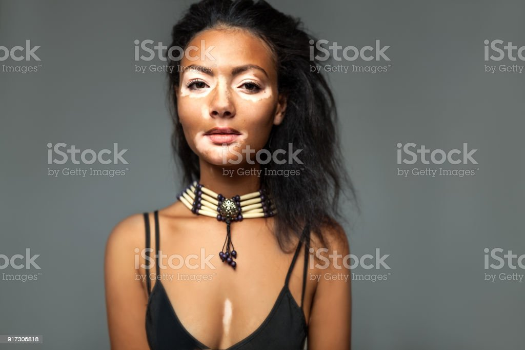 Beautiful African girl in studio with skin problems stock photo