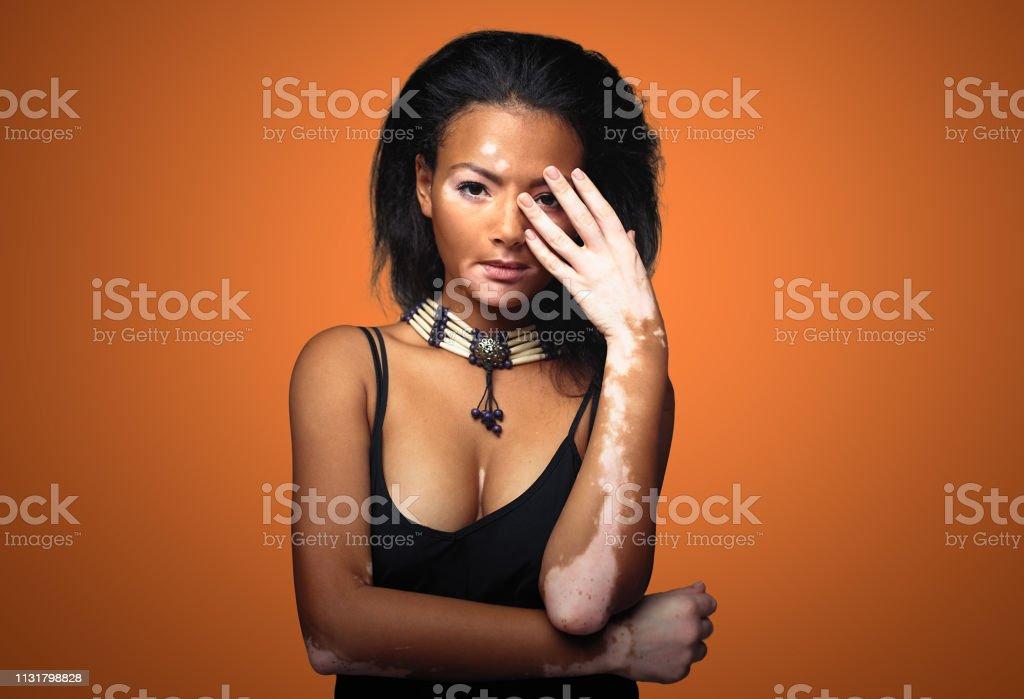 Beautiful African Girl In Studio With Skin Problems Vitiligo Studio Shooting Stock Photo Download Image Now Istock