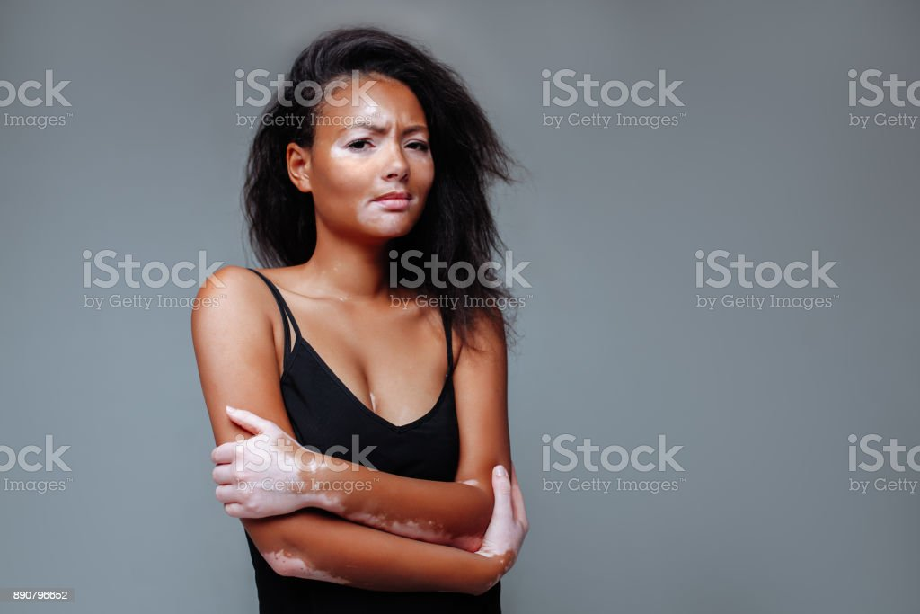 beautiful african girl with a skin problem hugging herself in a studio with both hands stock photo