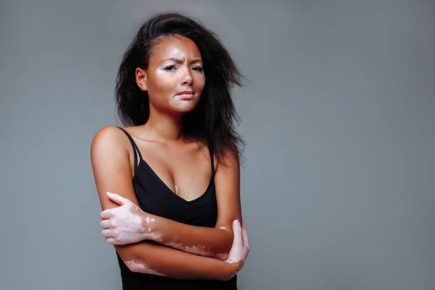 beautiful african girl with a skin problem hugging herself in a studio with both hands - ugly girl stock photos and pictures