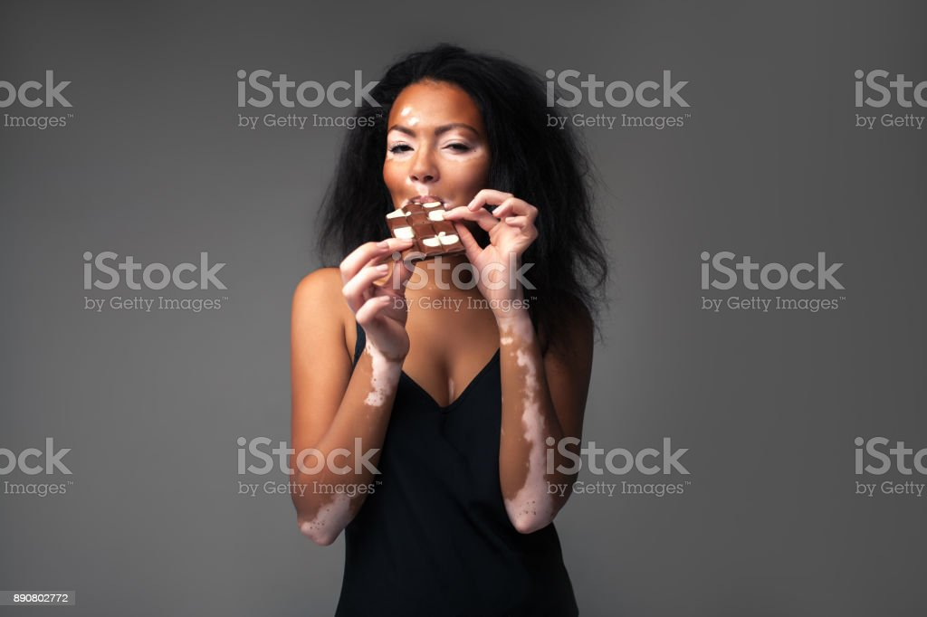 beautiful African girl with vitiligo in the studio eating black and white chocolate. stock photo