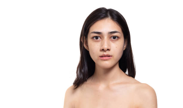 Beautiful asian woman get freckles, blemish, pimple or acne, dull skin, scar on beauty face. Charming beautiful young woman get problems of her skin. She looks unhappy. isolated on white, copy space stock photo