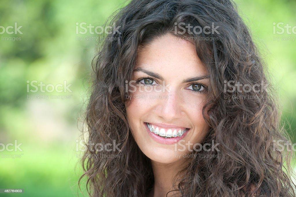 Wunderschöne Zahnspange Lächeln - Lizenzfrei 20-24 Jahre Stock-Foto