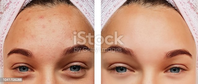 istock beautiful eye girl treatment, before and after procedures, acne 1041705088