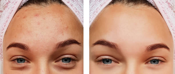 beautiful eye girl treatment, before and after procedures, acne beautiful eye girl treatment, before and after procedures, acne antiaging stock pictures, royalty-free photos & images