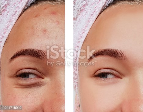 istock beautiful eye girl treatment, before and after procedures, acne 1041718910
