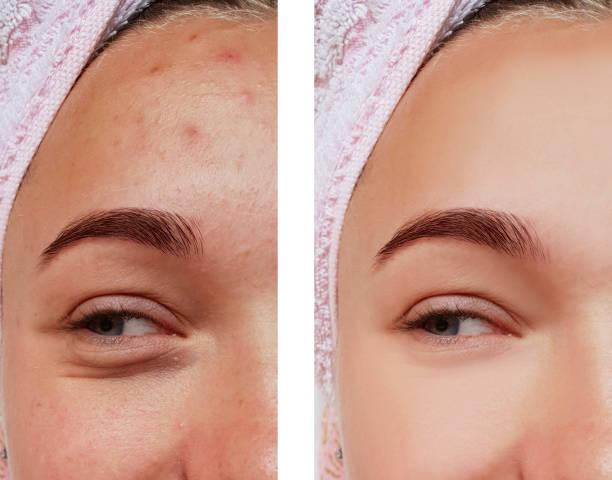 vackra ögon flicka behandling, före och efter förfaranden, akne - filler swollen bildbanksfoton och bilder