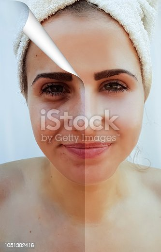 istock beautiful girl wrinkles acne on the face before the procedure 1051302416